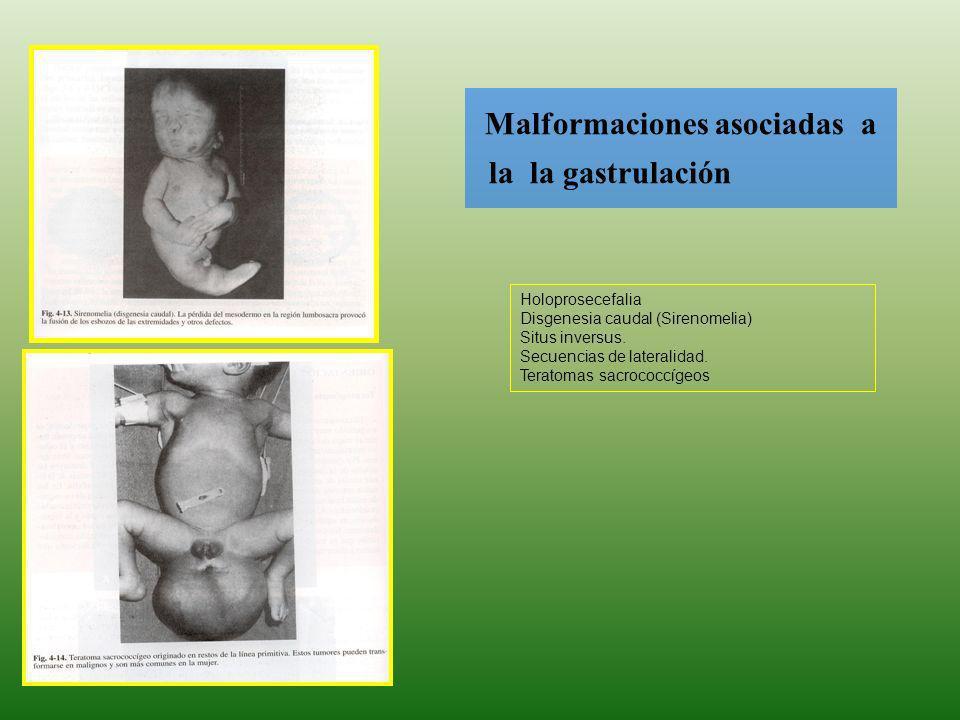 Malformaciones asociadas a la la gastrulación