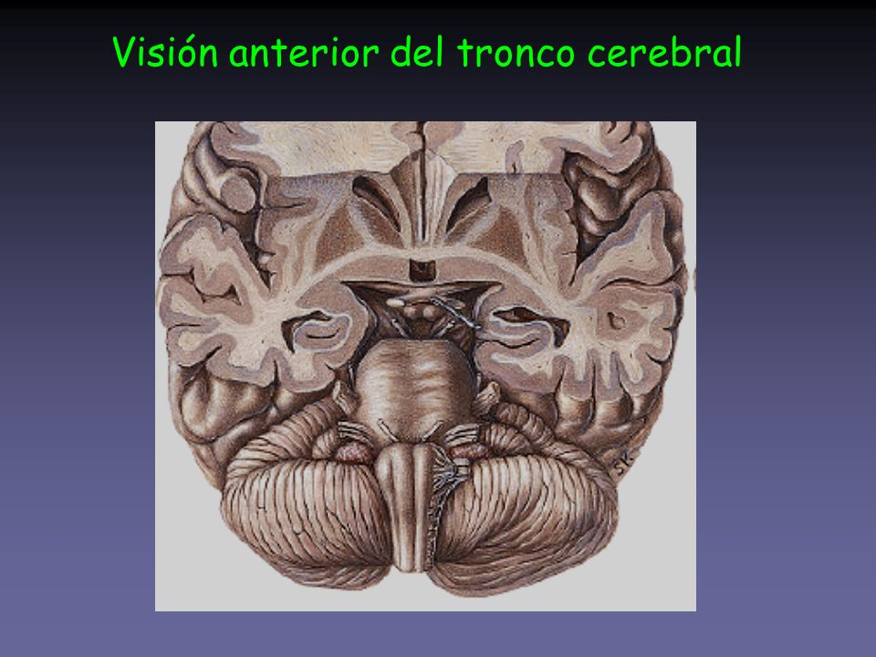 Visión anterior del tronco cerebral