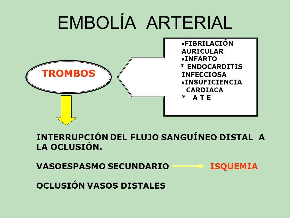 EMBOLÍA ARTERIAL TROMBOS