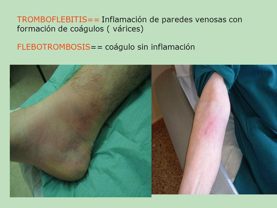 TROMBOFLEBITIS== Inflamación de paredes venosas con formación de coágulos ( várices) FLEBOTROMBOSIS== coágulo sin inflamación