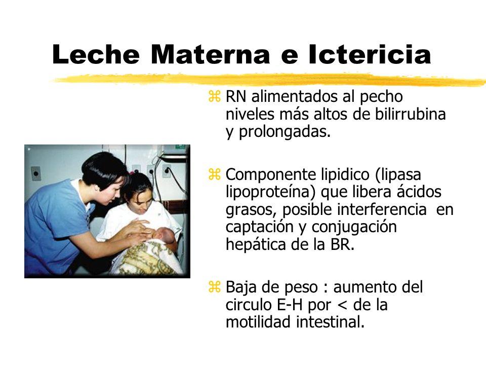 Leche Materna e Ictericia