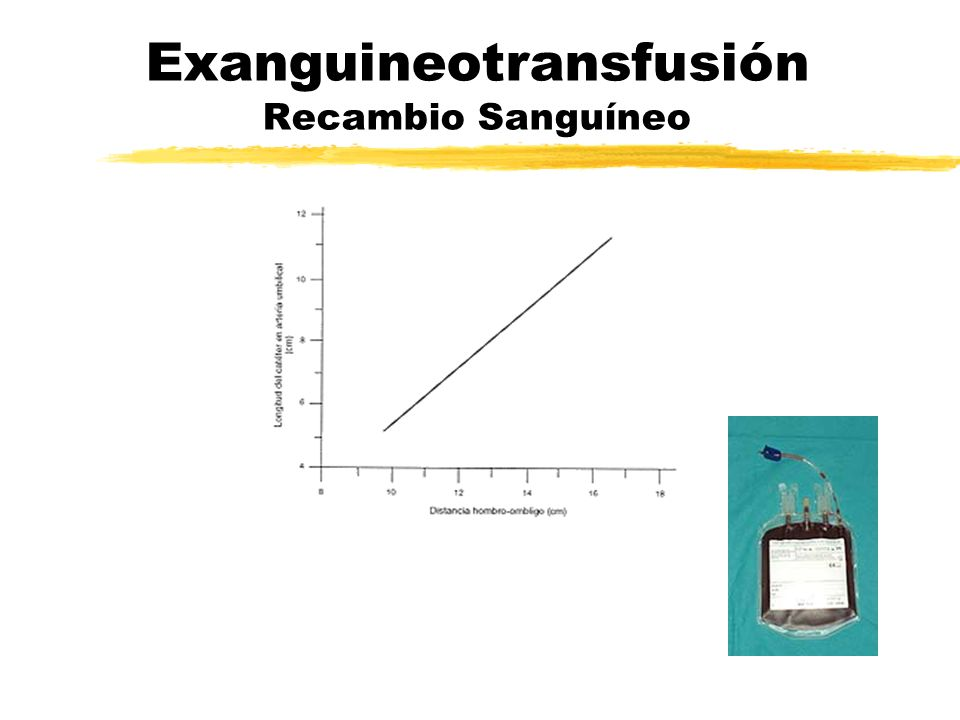 Exanguineotransfusión Recambio Sanguíneo
