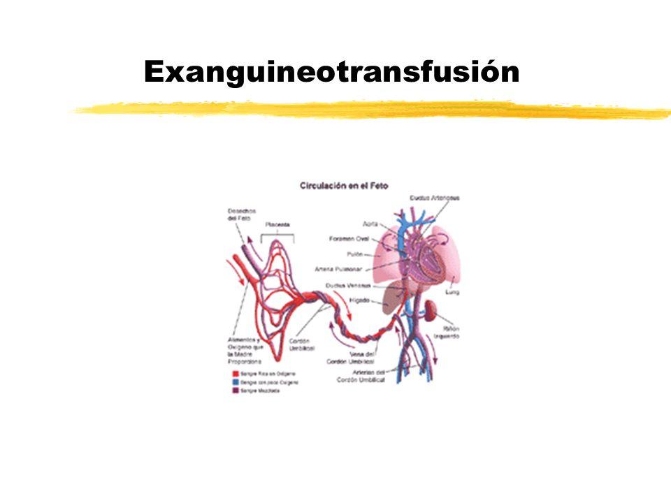 Exanguineotransfusión