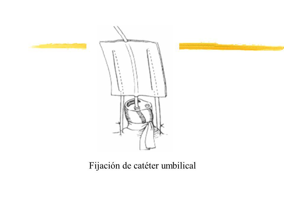 Fijación de catéter umbilical