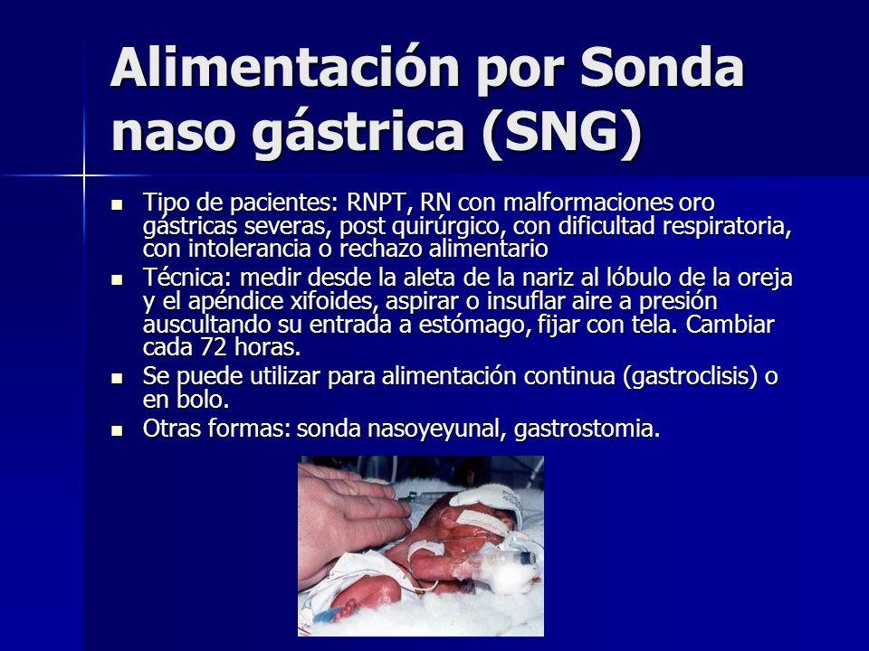 Alimentación por Sonda naso gástrica (SNG)