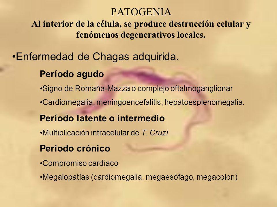 Enfermedad de Chagas adquirida.