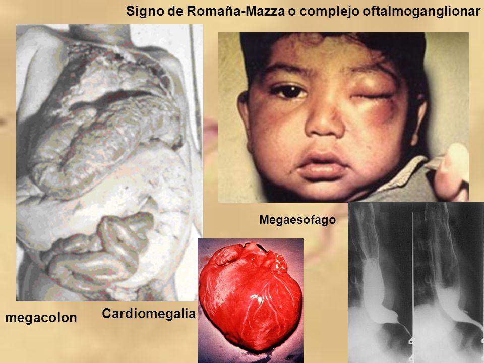 Signo de Romaña-Mazza o complejo oftalmoganglionar