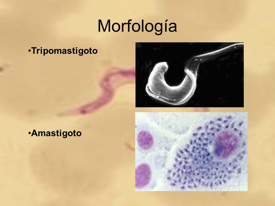 Morfología Tripomastigoto Amastigoto