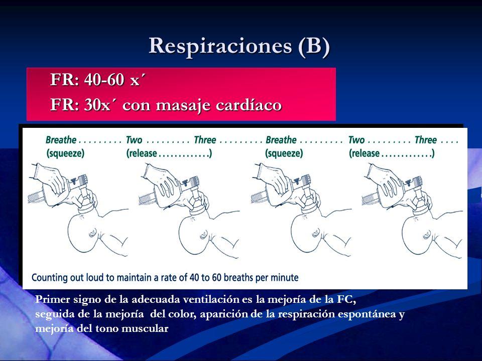 Respiraciones (B) FR: 40-60 x´ FR: 30x´ con masaje cardíaco