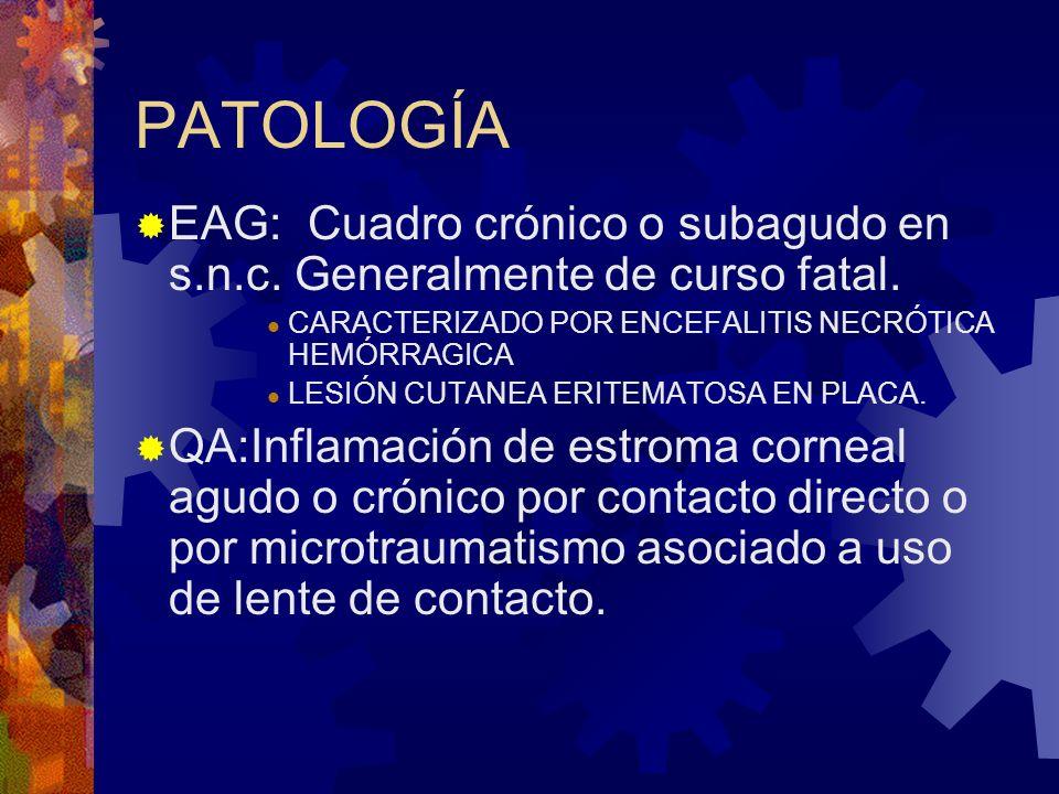 PATOLOGÍA EAG: Cuadro crónico o subagudo en s.n.c. Generalmente de curso fatal. CARACTERIZADO POR ENCEFALITIS NECRÓTICA HEMÓRRAGICA.