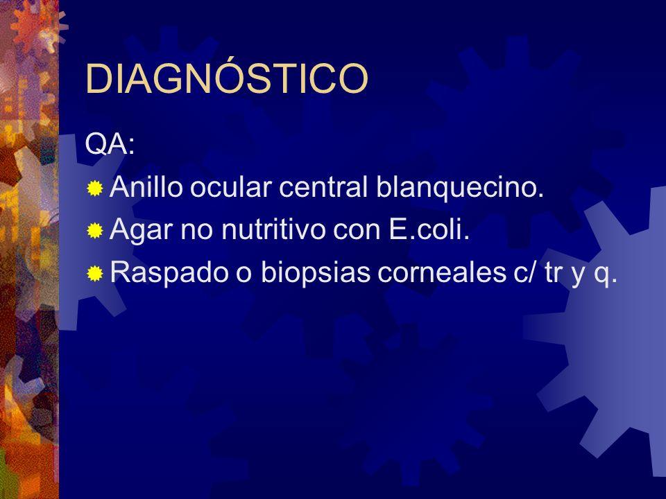 DIAGNÓSTICO QA: Anillo ocular central blanquecino.