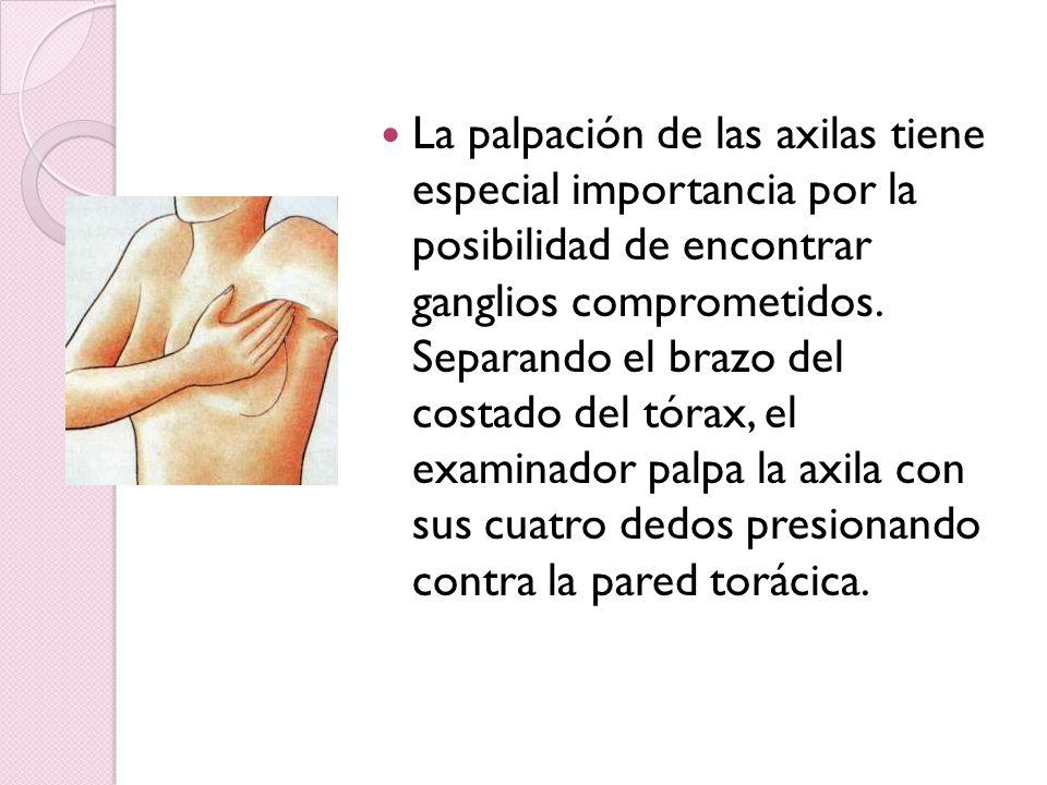La palpación de las axilas tiene especial importancia por la posibilidad de encontrar ganglios comprometidos.