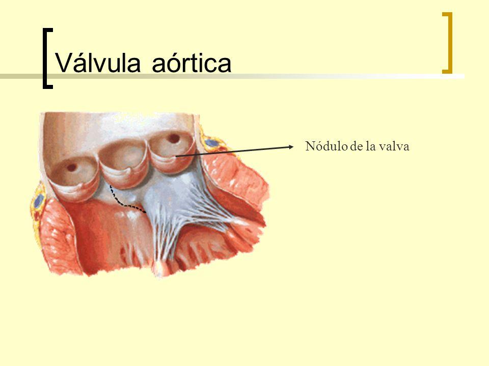 Válvula aórtica Nódulo de la valva