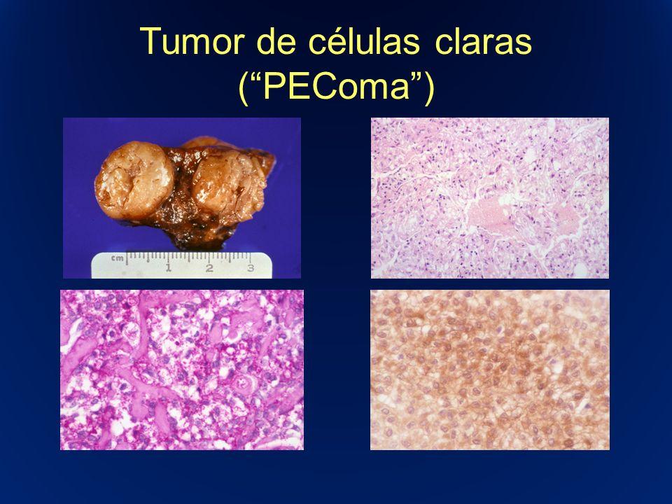 Tumor de células claras ( PEComa )