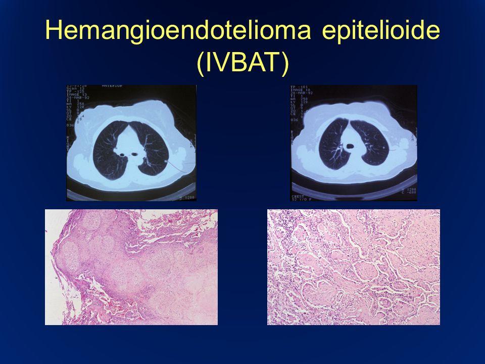 Hemangioendotelioma epitelioide (IVBAT)