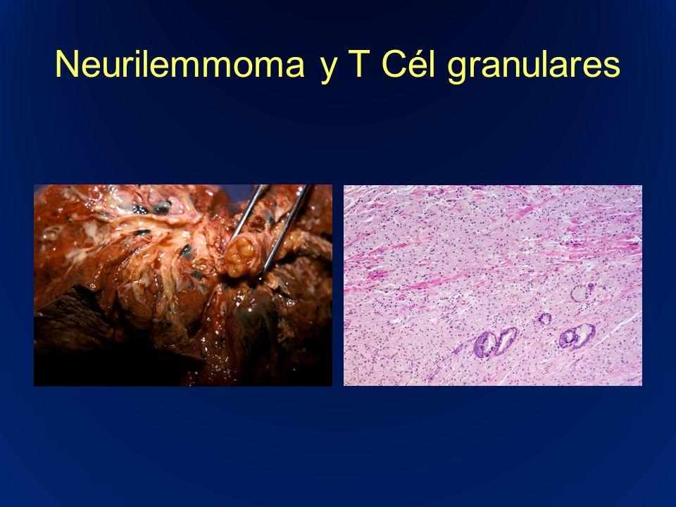 Neurilemmoma y T Cél granulares
