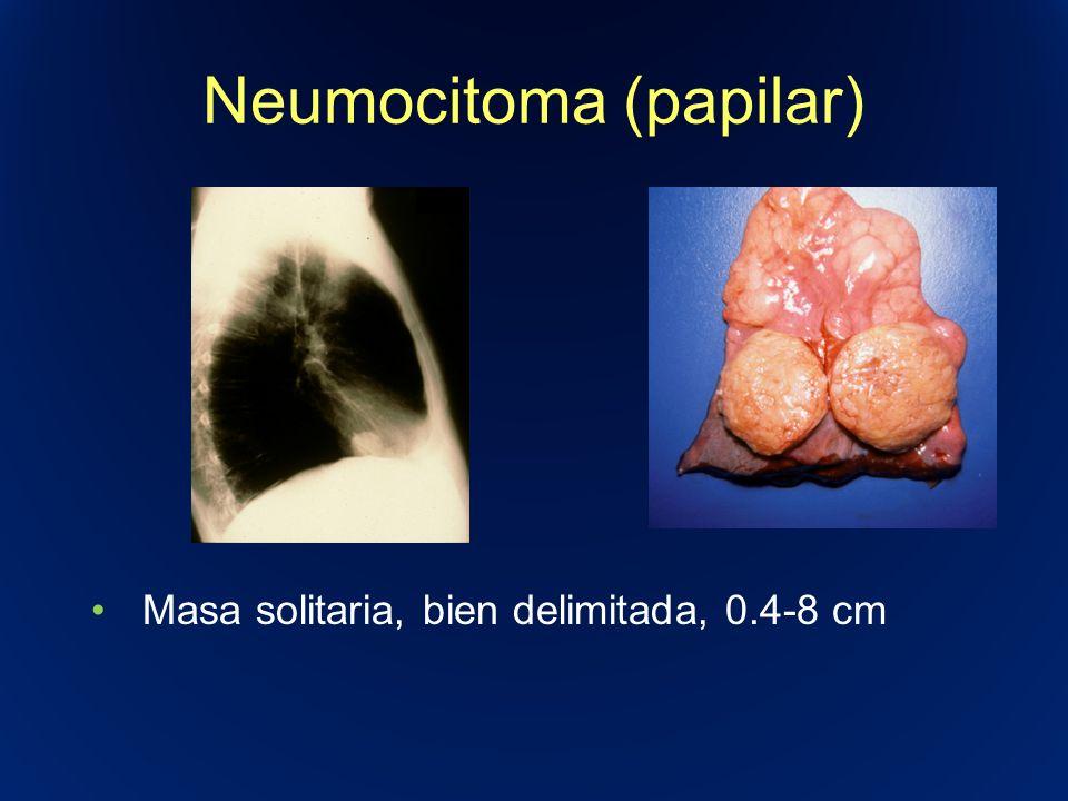 Neumocitoma (papilar)