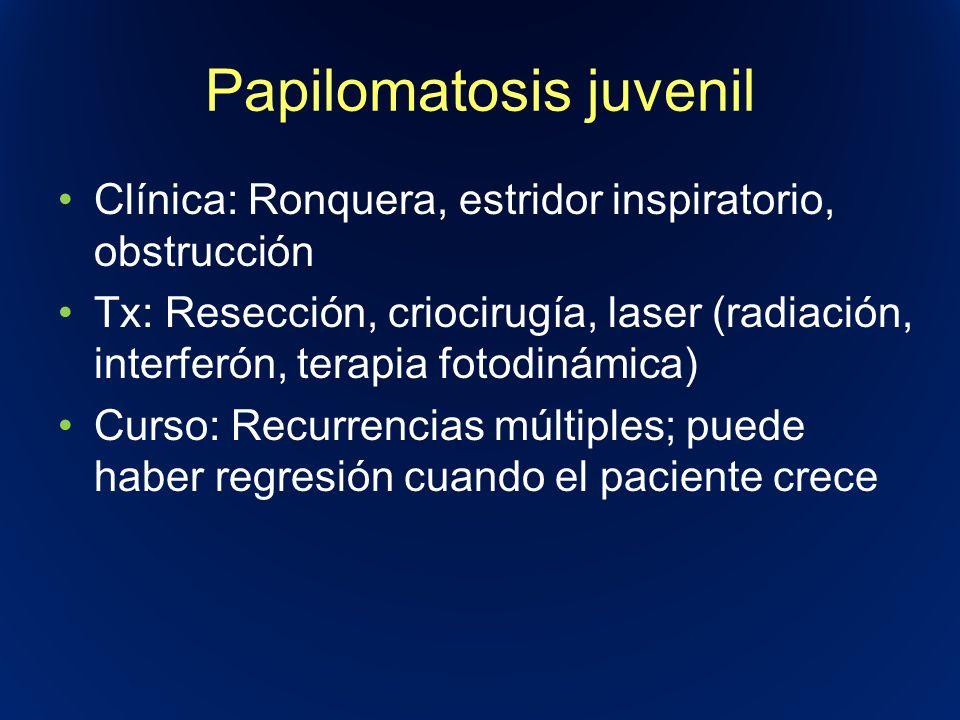 Papilomatosis juvenil