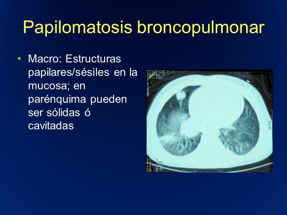 Papilomatosis broncopulmonar