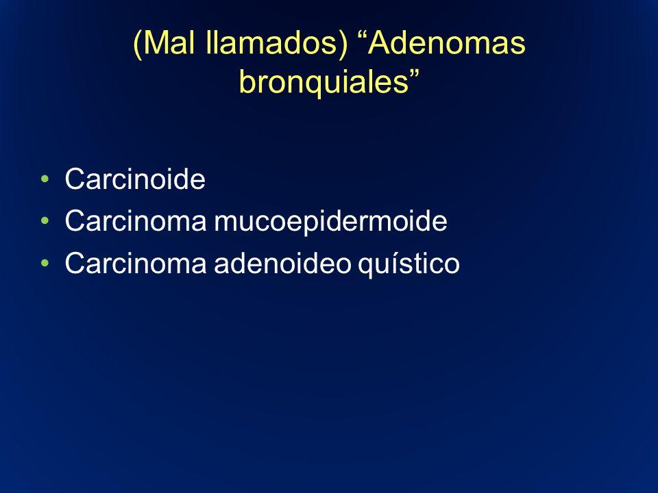 (Mal llamados) Adenomas bronquiales