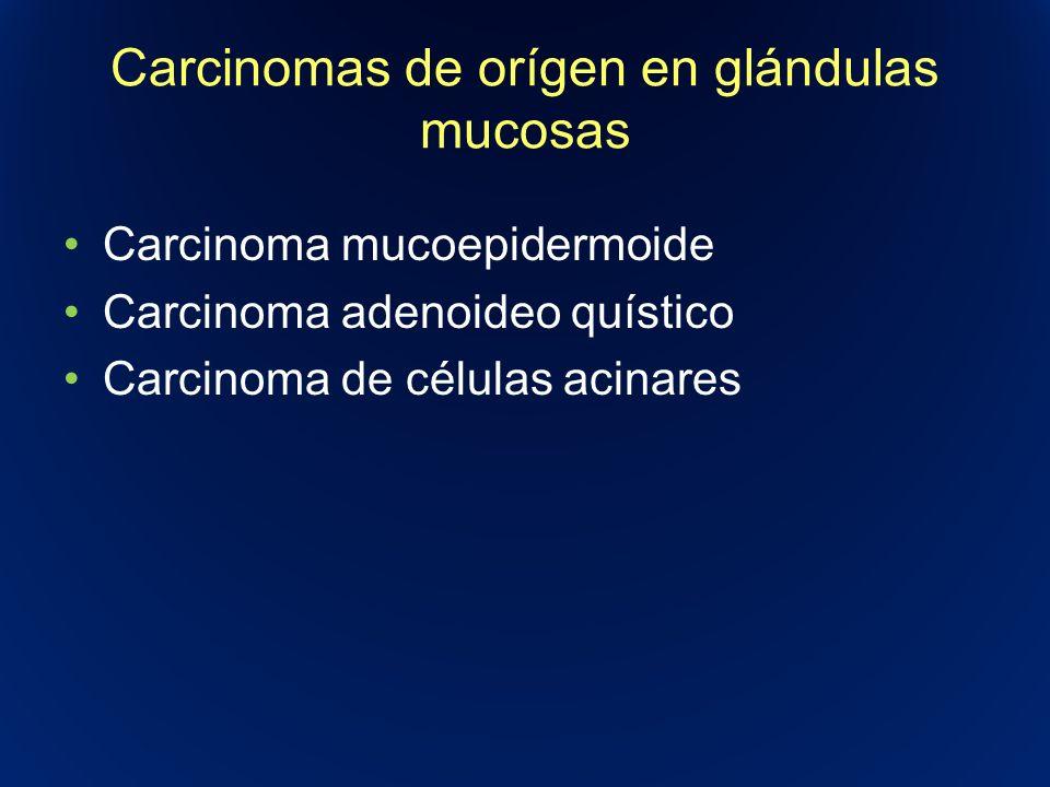 Carcinomas de orígen en glándulas mucosas