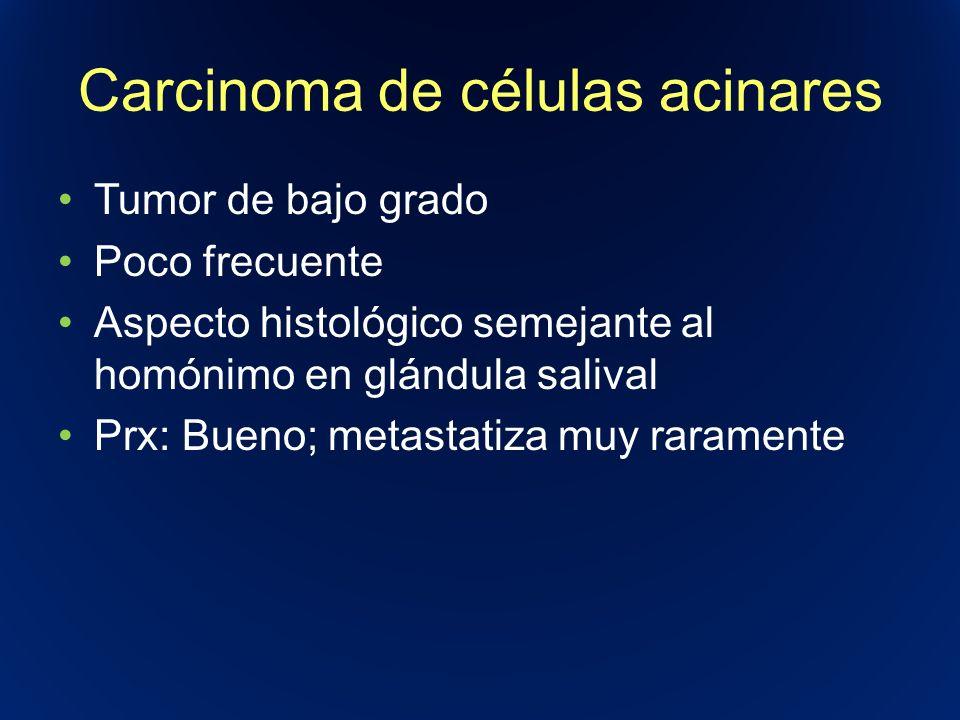 Carcinoma de células acinares