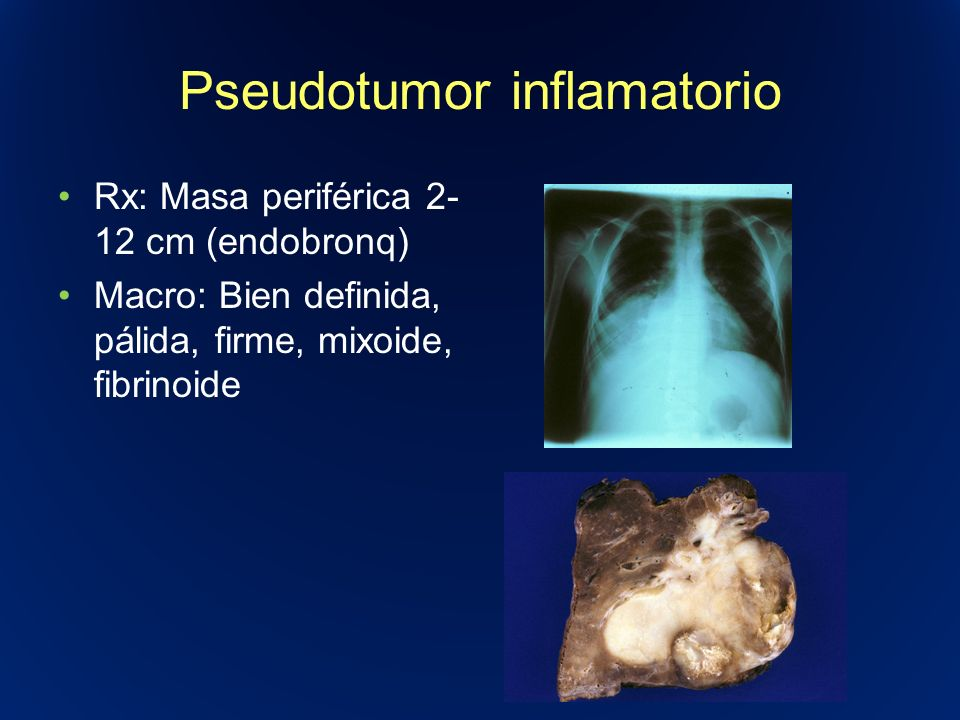 Pseudotumor inflamatorio