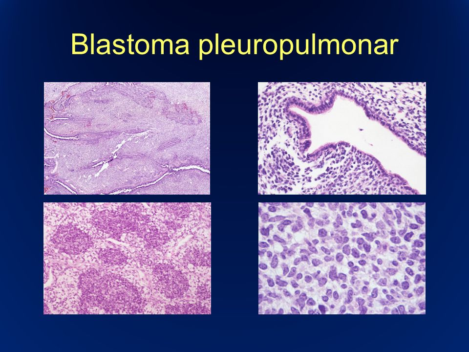 Blastoma pleuropulmonar