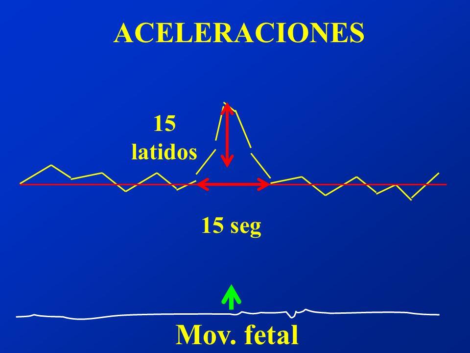 ACELERACIONES Mov. fetal