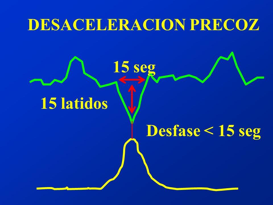 DESACELERACION PRECOZ