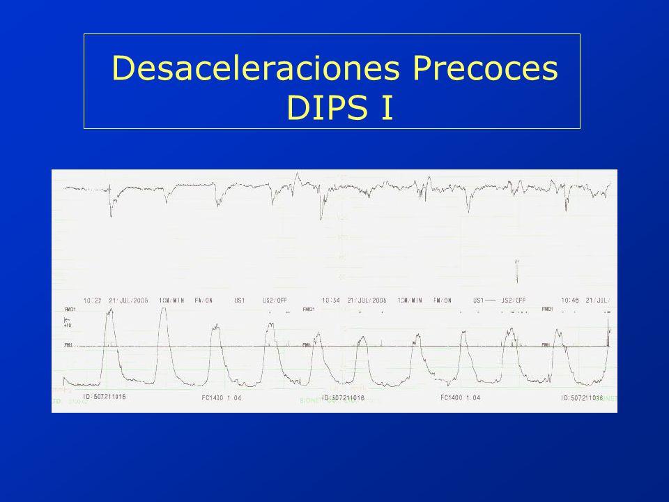 Desaceleraciones Precoces DIPS I