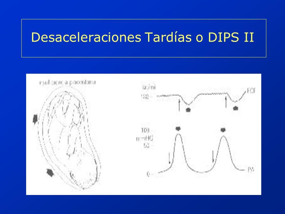 Desaceleraciones Tardías o DIPS II