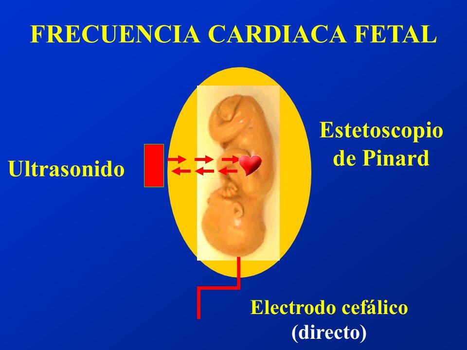 FRECUENCIA CARDIACA FETAL Electrodo cefálico (directo)