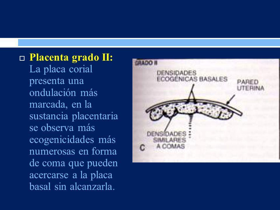 Placenta grado II: La placa corial presenta una ondulación más marcada, en la sustancia placentaria se observa más ecogenicidades más numerosas en forma de coma que pueden acercarse a la placa basal sin alcanzarla.