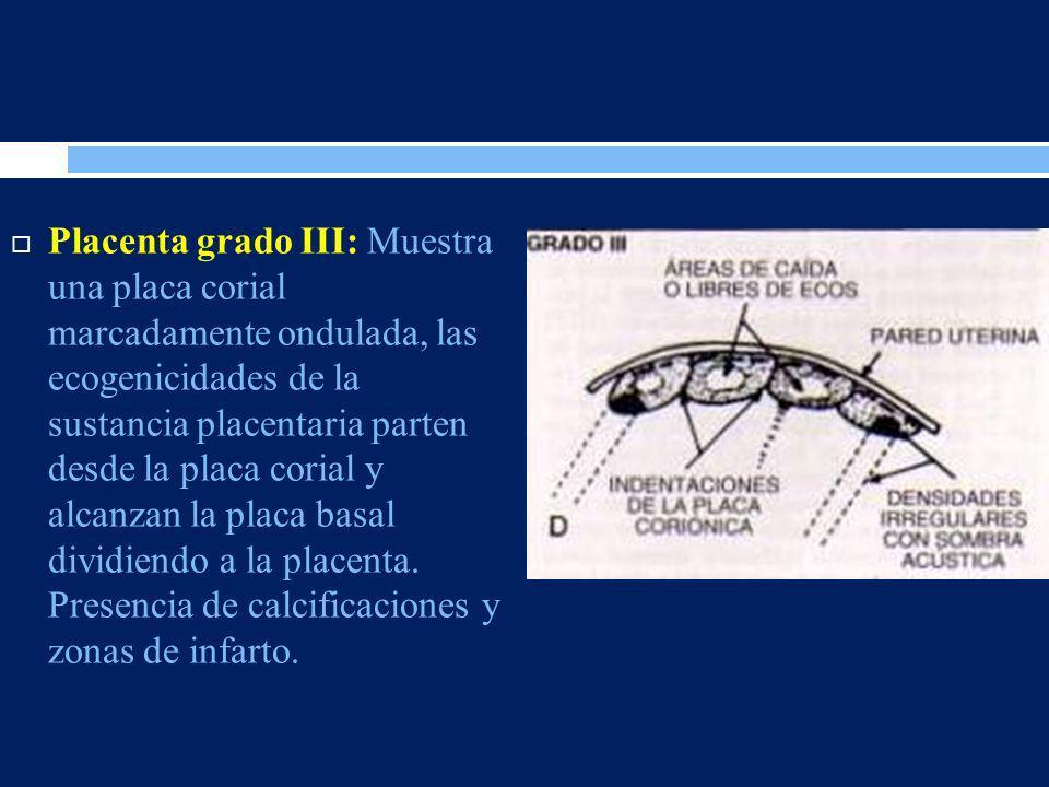 Placenta grado III: Muestra una placa corial marcadamente ondulada, las ecogenicidades de la sustancia placentaria parten desde la placa corial y alcanzan la placa basal dividiendo a la placenta.