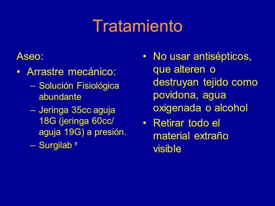 Tratamiento Aseo: Arrastre mecánico: