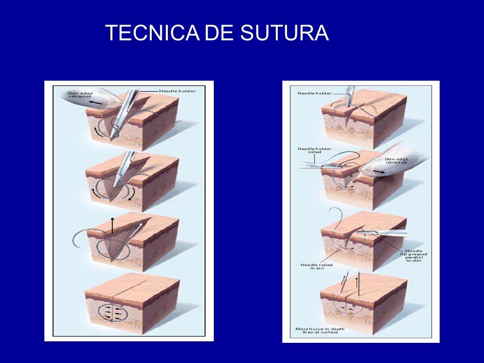 TECNICA DE SUTURA