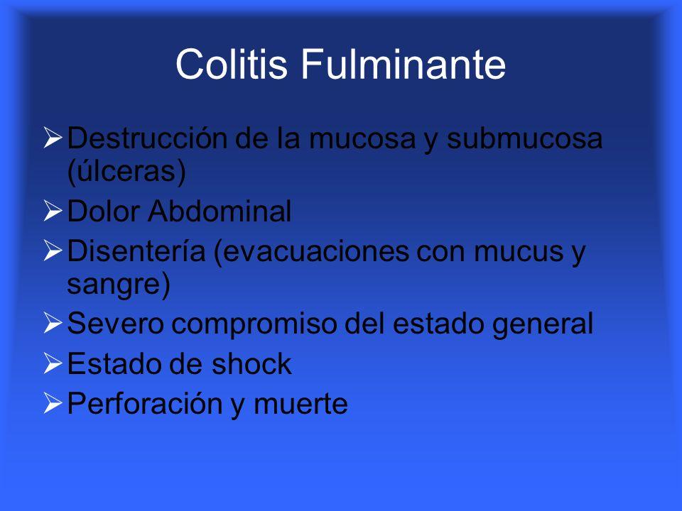 Colitis Fulminante Destrucción de la mucosa y submucosa (úlceras)