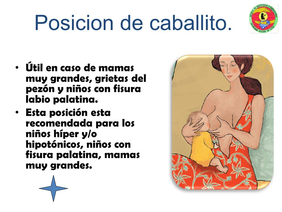 Posicion de caballito. Útil en caso de mamas muy grandes, grietas del pezón y niños con fisura labio palatina.