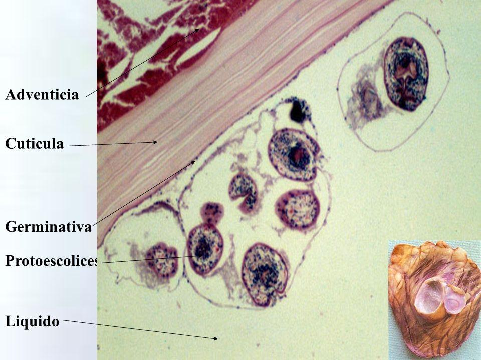 Adventicia Cuticula Germinativa Protoescolices Liquido