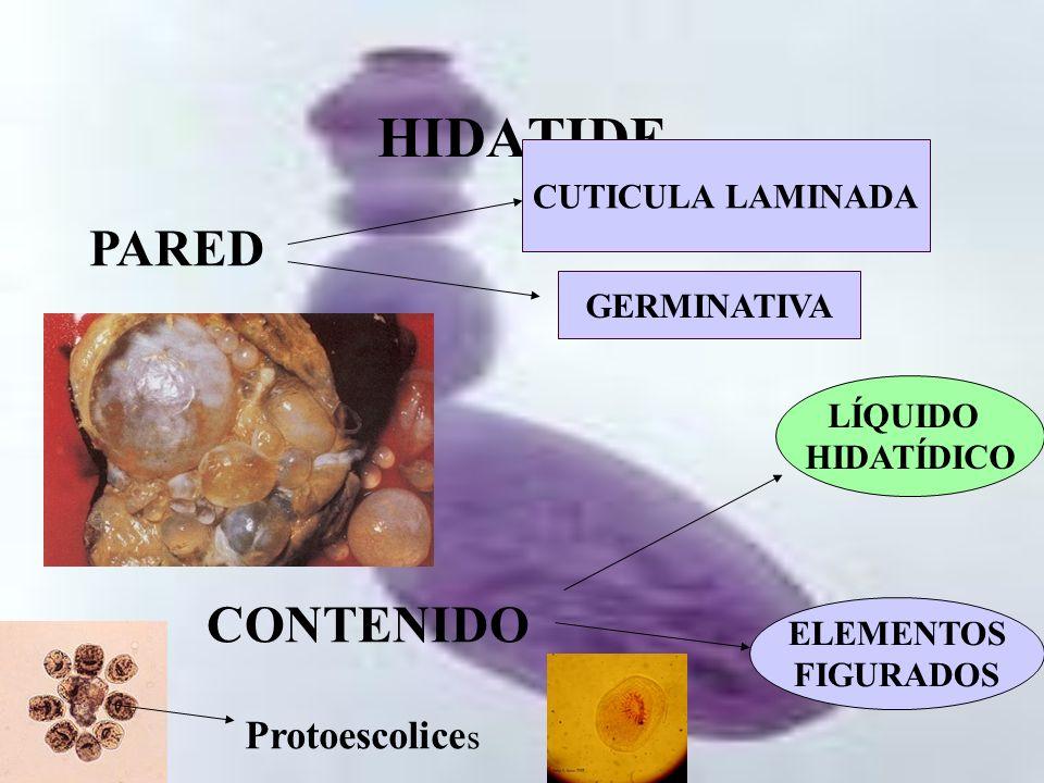 HIDATIDE PARED CONTENIDO Protoescolices CUTICULA LAMINADA GERMINATIVA