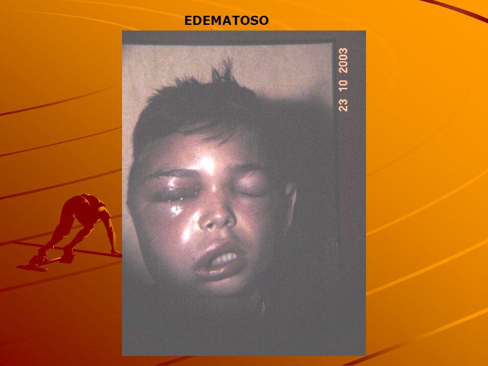 EDEMATOSO