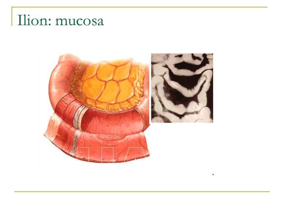 Ilion: mucosa UACh