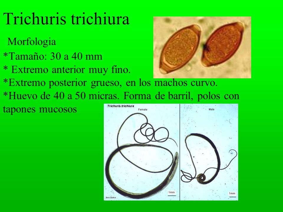 Trichuris trichiura Morfologia. Tamaño: 30 a 40 mm