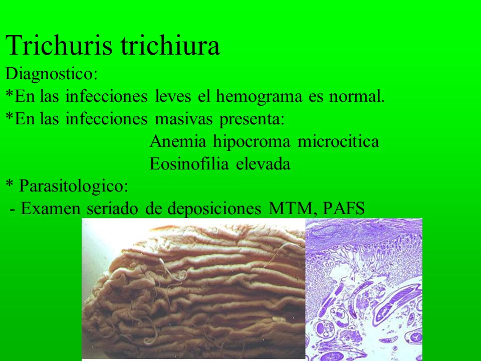 Trichuris trichiura Diagnostico: