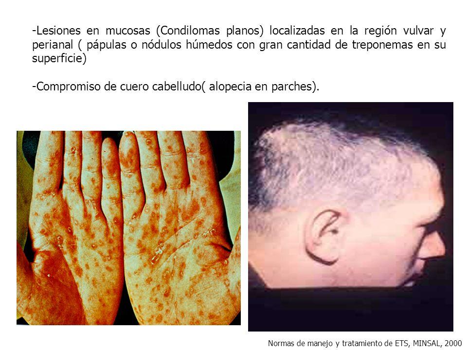 -Compromiso de cuero cabelludo( alopecia en parches).