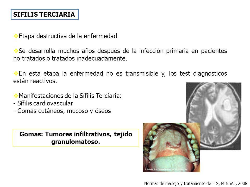 Gomas: Tumores infiltrativos, tejido granulomatoso.