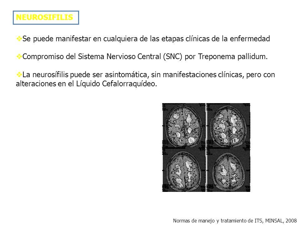 Compromiso del Sistema Nervioso Central (SNC) por Treponema pallidum.