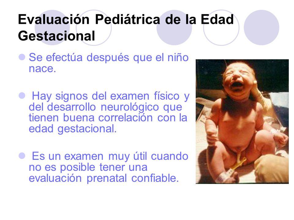 Evaluación Pediátrica de la Edad Gestacional