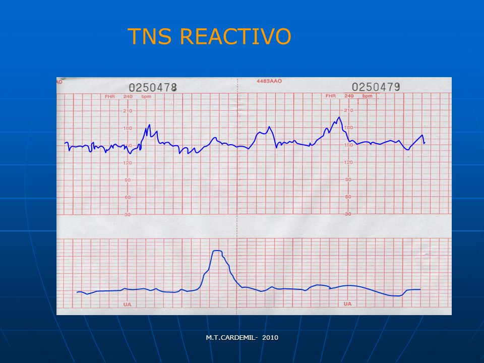 TNS REACTIVO M.T.CARDEMIL- 2010